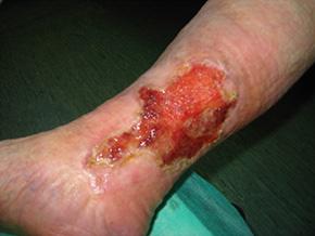 Otvorena rana na nozi