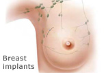Katalog - Breast implants