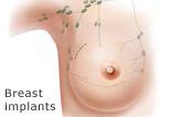 Katalog - Breast implants